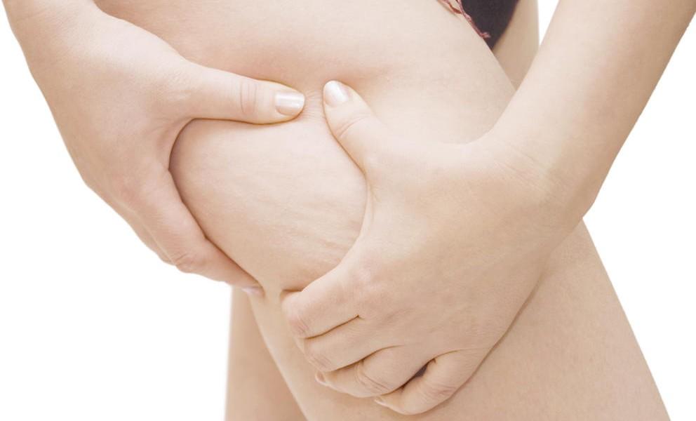 Eliminar la celulitis de forma natural