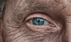 señales de envejecimiento prematuro