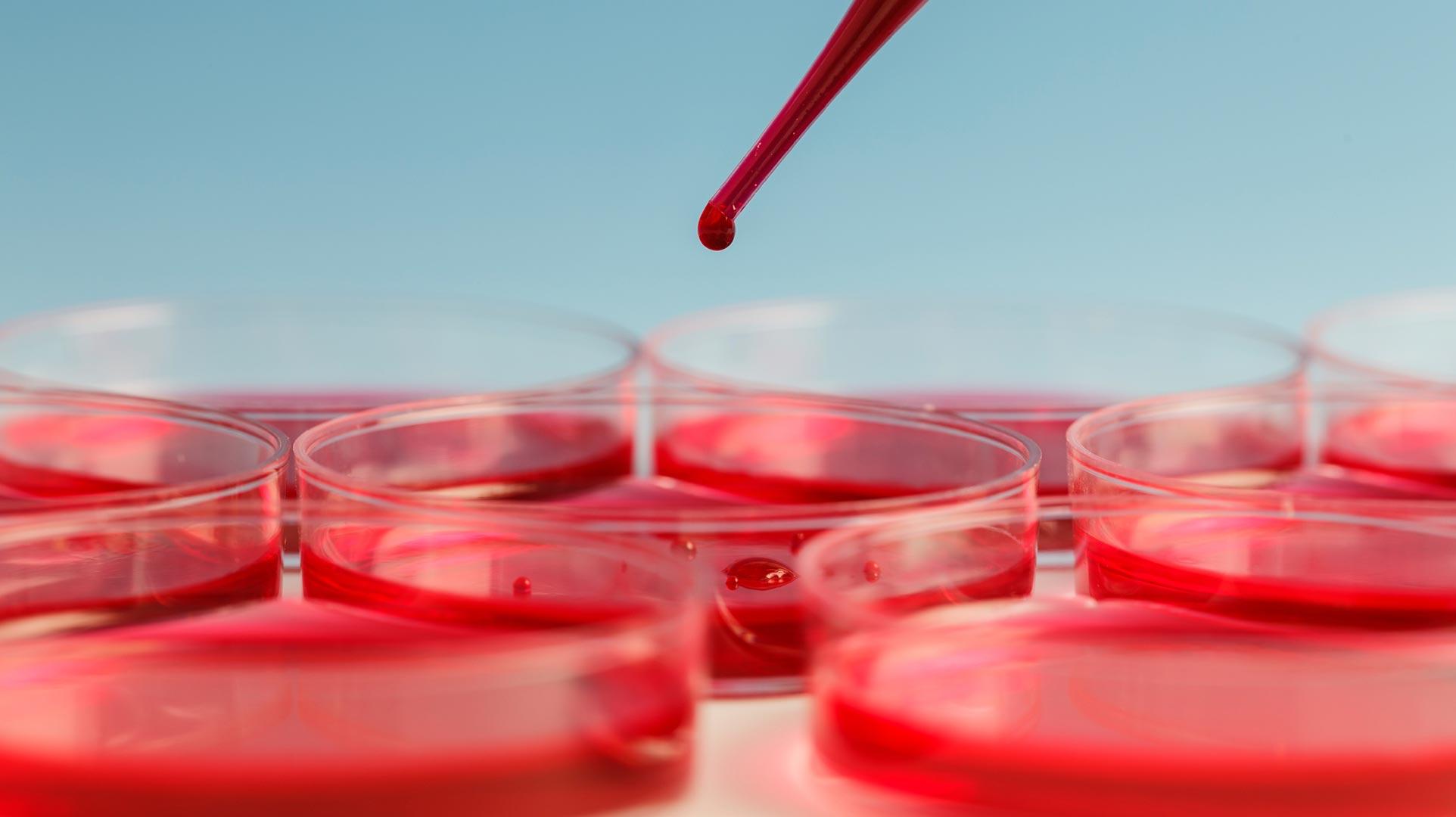 Cómo evitar la intoxicación por plomo en la sangre