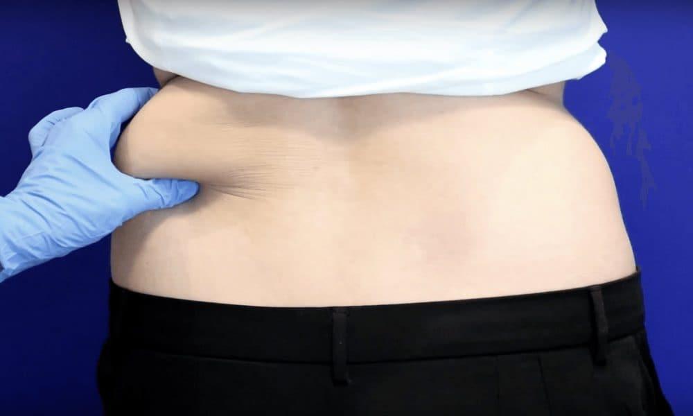 Consejos para Eliminar grasa localizada