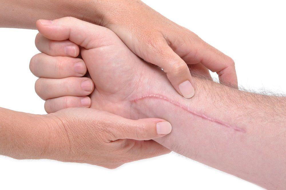 cicatrices curación
