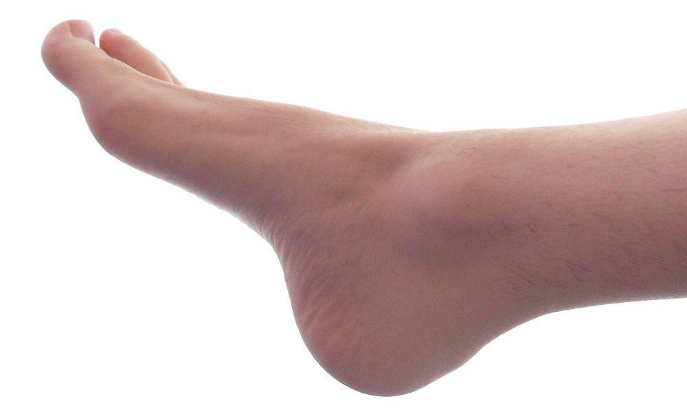 dedos en garra y juanetes