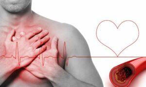 Hipercolesterolemia familiar genética: qué es y consejos para controlarla